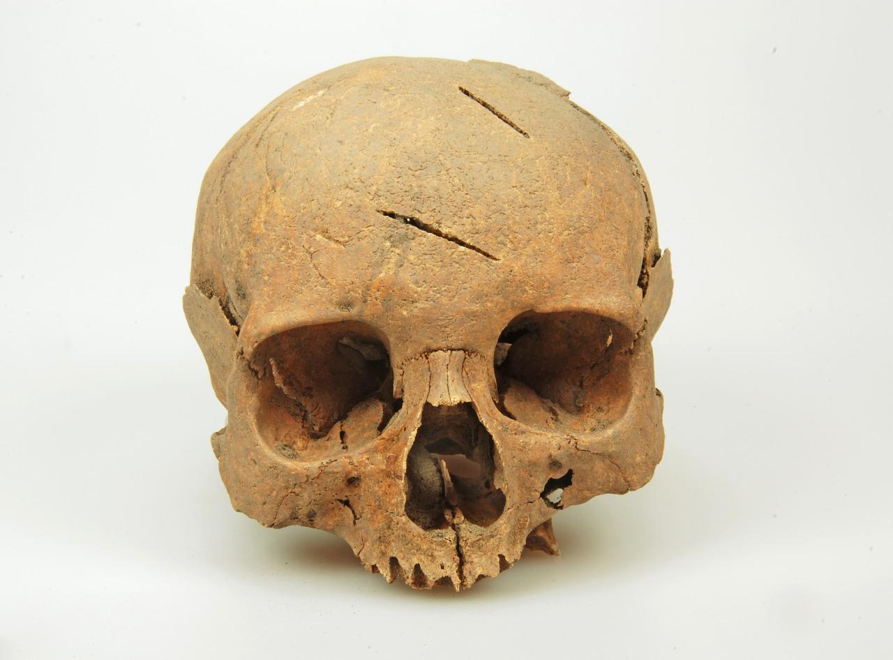 Een van de gevonden schedels, de zwaardsteken zijn duidelijk te zien. Beeld: J. Roefstra via Oneindig Noord-Holland