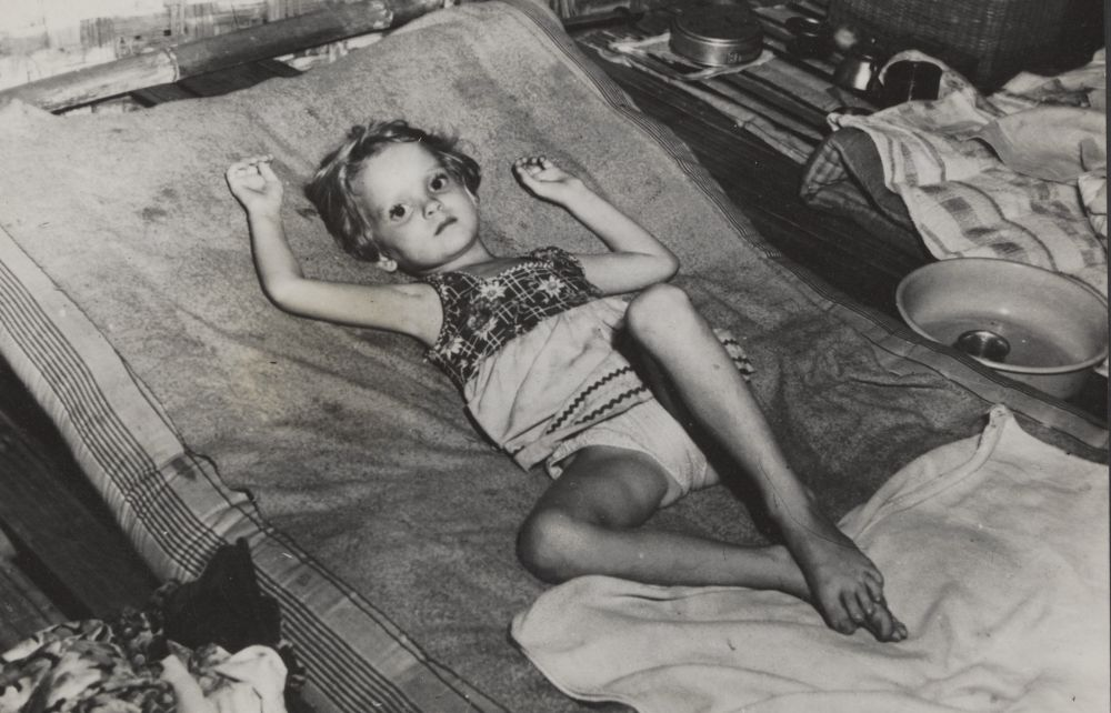 Kinderen hadden zwaar te lijden onder de Hongerwinter.